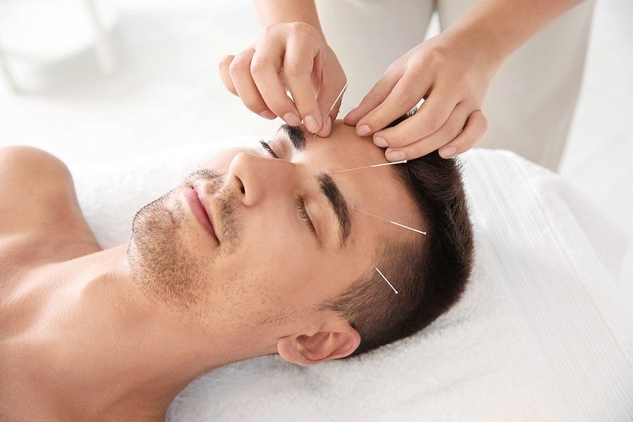 Mann bei einer Akupunktur
